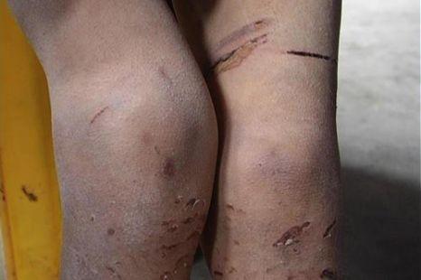 На ногах Дин Дин раны от жестоких наказаний, применяемых родителями. Фото с epochtimes.com