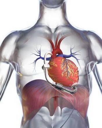 Схематическое изображение нового искусственного сердца. Фото: DeBakey Heart Assist/Micromed