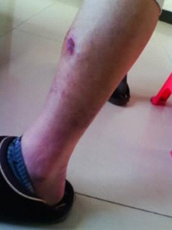 Рана на ноге последователя Фалуньгун, которую ему нанёс полицейский каблуком. Фото с minghui.org