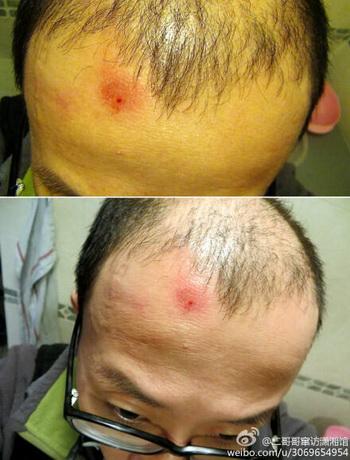 Ху Цзя, китайский активист, загрузил в Интернет две фотографии, где показана рана на его голове, полученные после того, как он был арестован его за «разжигание беспорядков» и избит. Фото предоставлено Ху Цзя