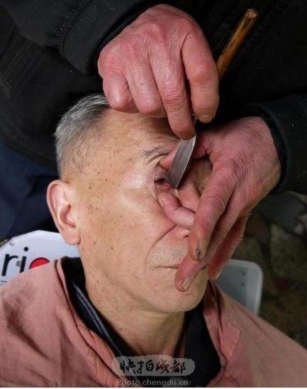 Чистка глаз ножом в Китае. Фото с epochtimes.com