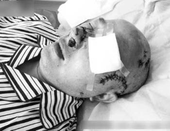 В Китае прохожие не помогли истекающему кровью пожилому мужчине. Изувеченное лицо 57-летнего У Цзяу. Фото: epochtimes.com