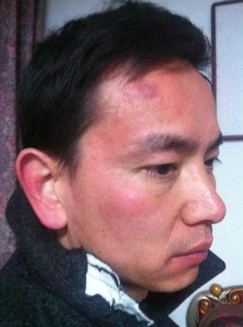 Цао Нань после допроса. Его били и брызгали в лицо перечной водой. Декабрь 2013 года. Фото с epochtimes.com