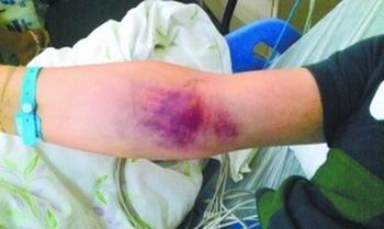 В результате отравления крысиным ядом, на теле Вана появились крупные кровяные пятна. Фото с epochtimes.com