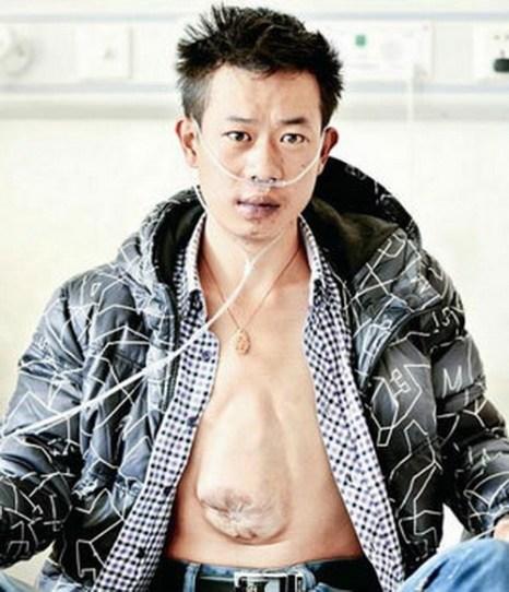 В Китае молодой человек по имени Хэ Чжилян уже 24 года живёт с редким смертельным заболеванием — эктопией сердца, когда сердце расположено снаружи тела. Фото: epochtimes.com