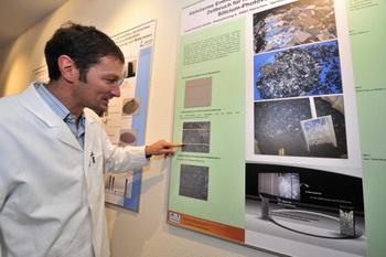 Ученые разработали метод быстрого восстановления разорванных нервов.  Фото: JOHN MACDOUGALL/AFP/Getty Images