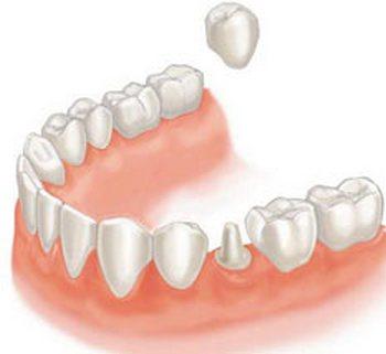 Один из способов имплантации зубов. Фото с сайта  http://intan.ru/implantatsiya/tseny/
