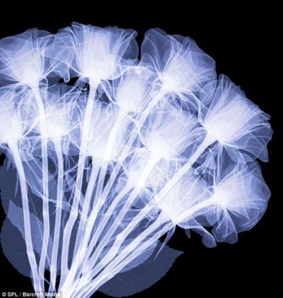 Фотографирование  в лучах рентгена.  Фото: Хью Терви/pravda.com.ua