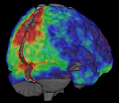 В дополнение к функциям, которые обрабатываются преимущественно в левом или правом полушариях, соответствующие области в левом и правом полушариях мозга сильно связаны и часто работают вместе для большинства функций мозга. Цветная карта показывает, насколько синхронизированы левое и правое полушария мозга. Фото: University of Utah