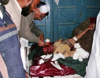 Раненых жертв  взрыва доставляют в ближайшие больницы. Фото: AKBAR MARWAT/AFP/Getty Images