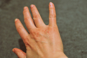 skin-dry-cracked-Image-fred_vflickr-300x199