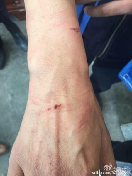 Пема Тседен показывает ссадины от наручников. Фото: Degecairang/Weibo