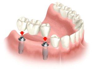 dental-bridge-implant-page