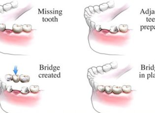 Waterloo Dentist - Erbsville Dental - Dental bridges