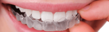 Affordable Invisalign Waterloo - Erbsville Dental - Waterloo Dentist