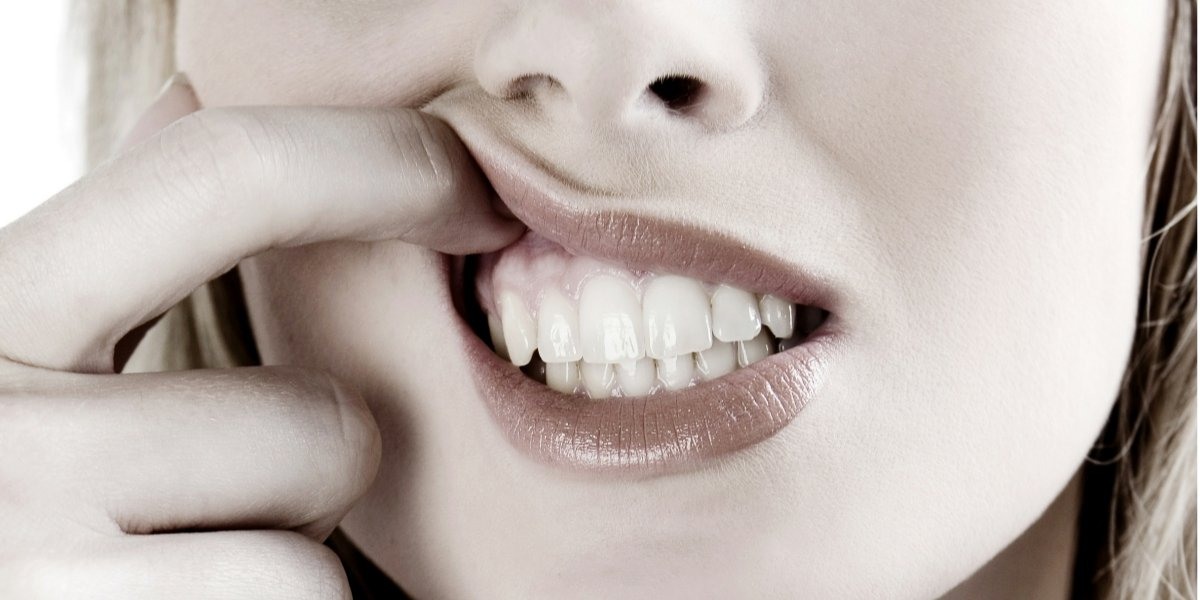 Why Your Tooth Deserves A Dental Crown-2