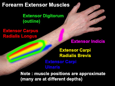 Forearm Extensor Muscle Overuse and RSI | Ergomatters RSI Blog