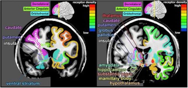 cannabis-cervello