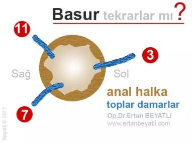 Basur tekrarlar mı? Toplar damarlar saat yönüne göre (3, 7, 11) gösterilmiştir.