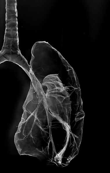 pieces-of-me-xray-lungs-and-bird