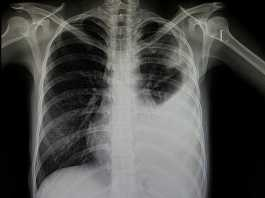 Imagen de Radiografía torácica