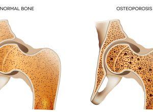 Osteoporosi cause e rimedi naturali