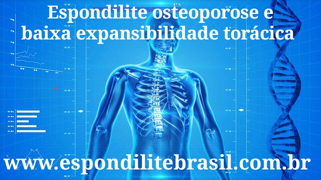 osteoartrite