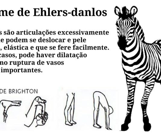 """alt=""""Coexistência entre Espondilite Anquilosante e Ehlers Danlos"""""""