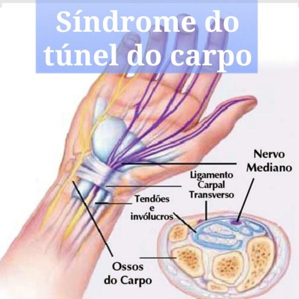 Síndrome do Túnel do Carpo e Espondilite