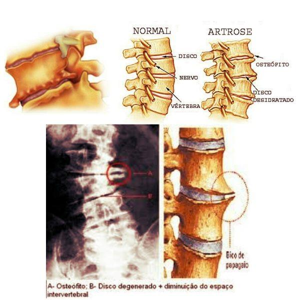 O que são osteófitos lombares (esporão ósseo)?