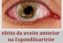 """alt=""""Efeitos da uveíte anterior nas Espondiloartrites"""""""