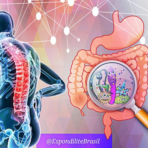 Espondilite e modificação da flora intestinal