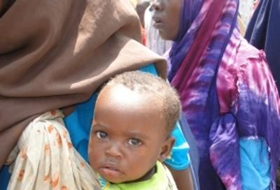 Uma das milhões de crianças da Somália que necessitam de ajuda alimentar – Foto de  Abdurrahman Warsameh da IPS