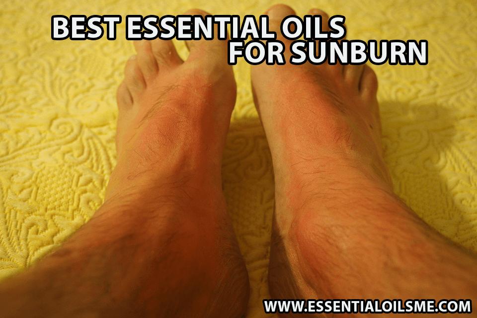 best essential oil for sunburn