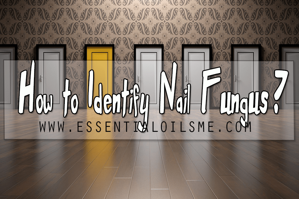How to identify nail fungus?