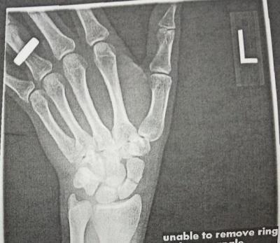 Scaphoid waist fracture