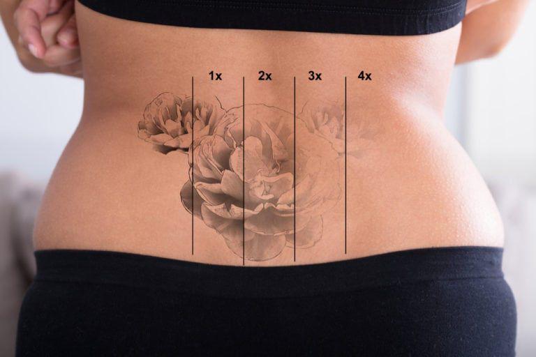 Îndepărtare tatuaje prin excizie chirurgicală a tatuajului