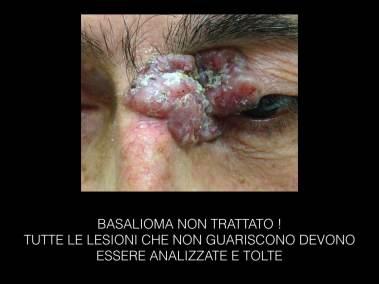 basaliomi-003