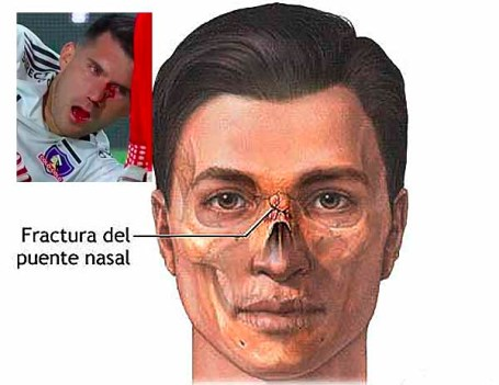 Fractura nasal