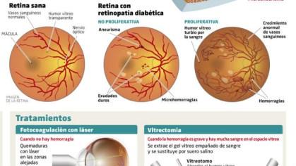 retinopatia-diabetica-680x3831-680x383