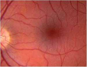 Pliegues retinianos
