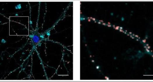 Imagen de microscopía confocal fluorescencia que muestra nanopartículas (en rojo) depositadas en las membranas neuronales (en azul marino) sin ingresar a las células