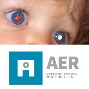 foto de dos ojos con aspecto característico de retinoblastoma