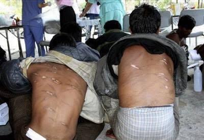 Rohingyas martyr