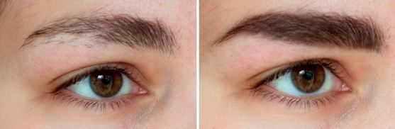 Castor Oil For Eyebrows How To Use For Growth Of Thick