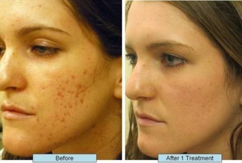 dark spots on skin causes rid of lighten remove fade bleach treat small dry black