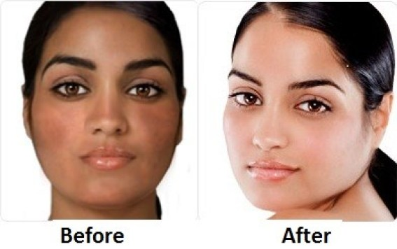 https://i0.wp.com/www.etopical.com/skin/wp-content/uploads/sites/4/2015/03/Best-Skin-Lightening-Pills-Ivory-Caps-Before-and-After-Photos.jpg?resize=567%2C356