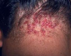 red bumps on head small itchy red bumps how to rid of hurting red bumps with white head