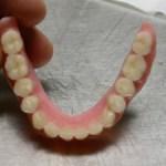 Dopo aver messo una Protesi Mobile (dentiera)