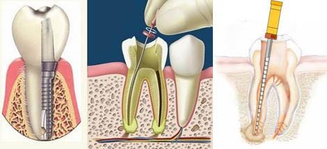 Endodonzia esempio Dentalhouse Clinic